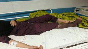 قطع دست یک دختر دانش آموز بر اثر انفجار مواد محترقه درکوهدشت